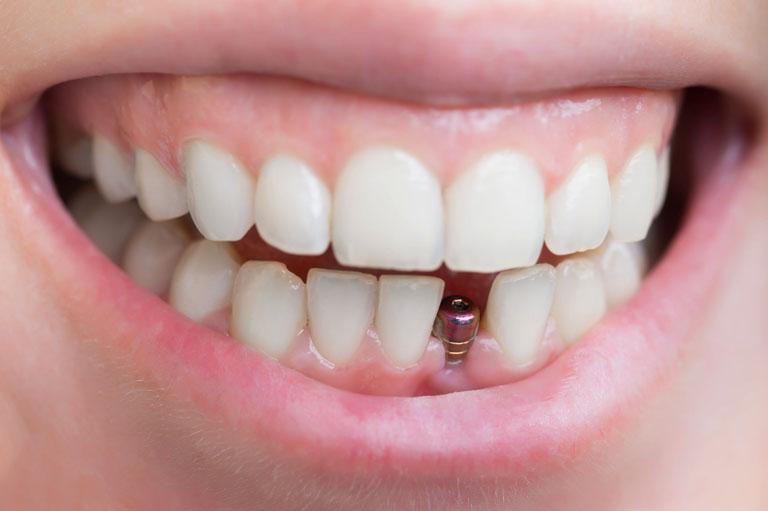 Cómo evitar sufrir periimplantitis - Bousoño Vargas - Especialistas en implantes dentales en Oviedo
