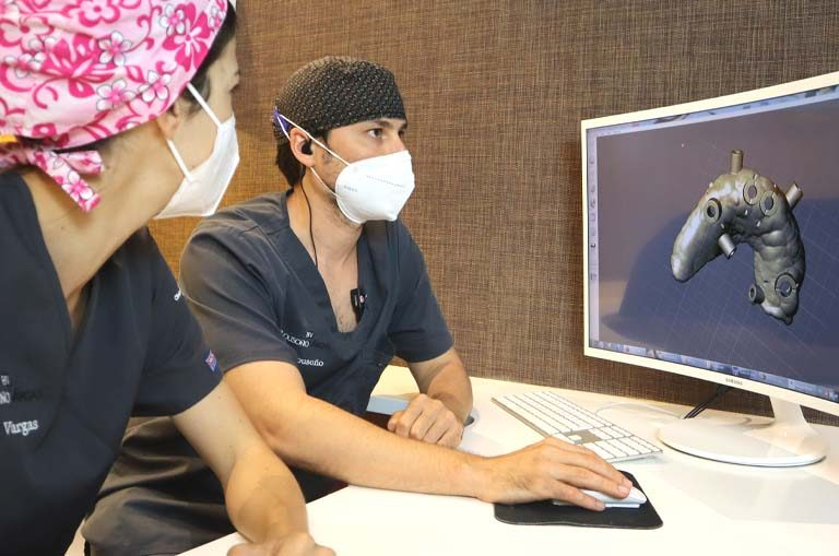 implantes dentales sin cirugía