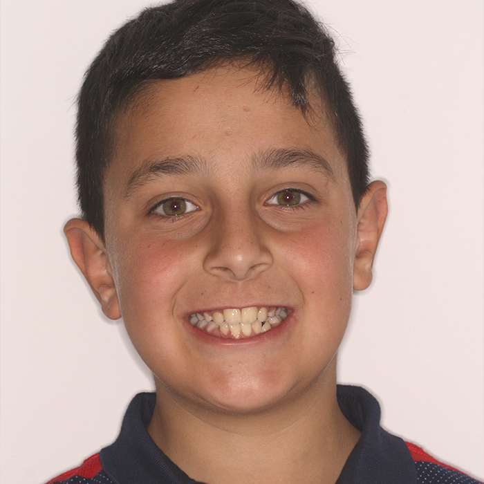 David. Dentista infantil en Oviedo