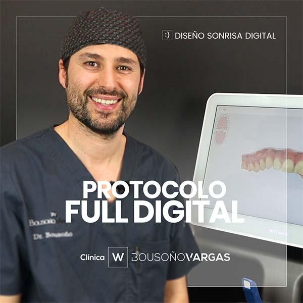 implantes en oviedo. cirugia guiada. dentistas en oviedo. Protocolo Full digital