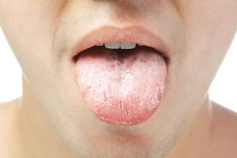 Lengua COVID ¿Nuevo síntoma de Coronavirus? Bousoño Vargas tus Dentistas en Oviedo
