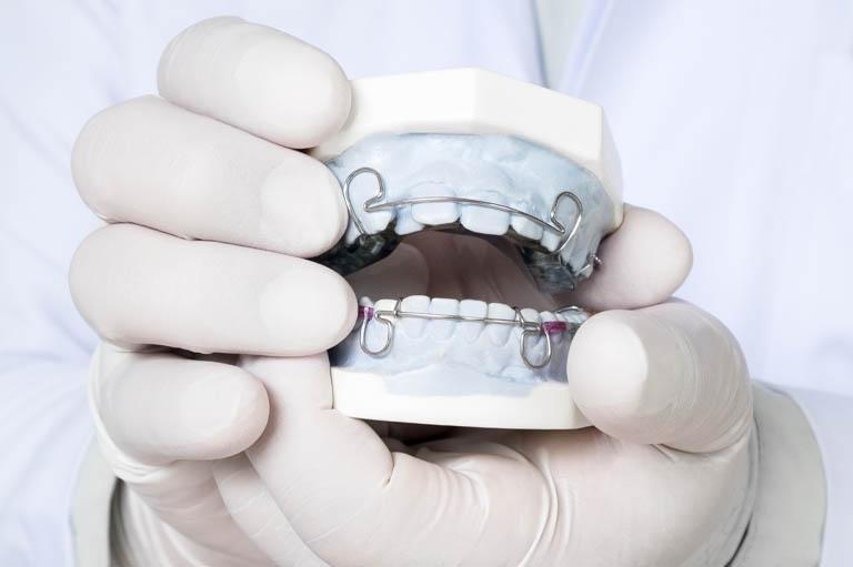 retenedor dental segundo tratamiento de ortodoncia en Oviedo, Bousoño Vargas
