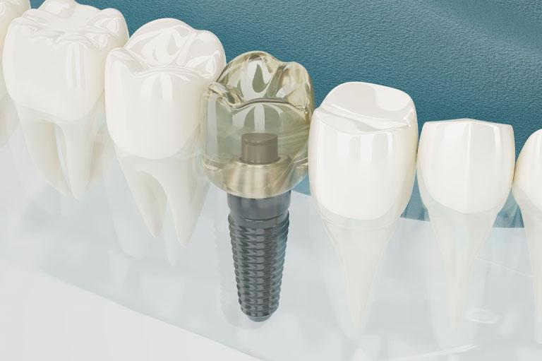 Opciones de implantes dentales en Oviedo.