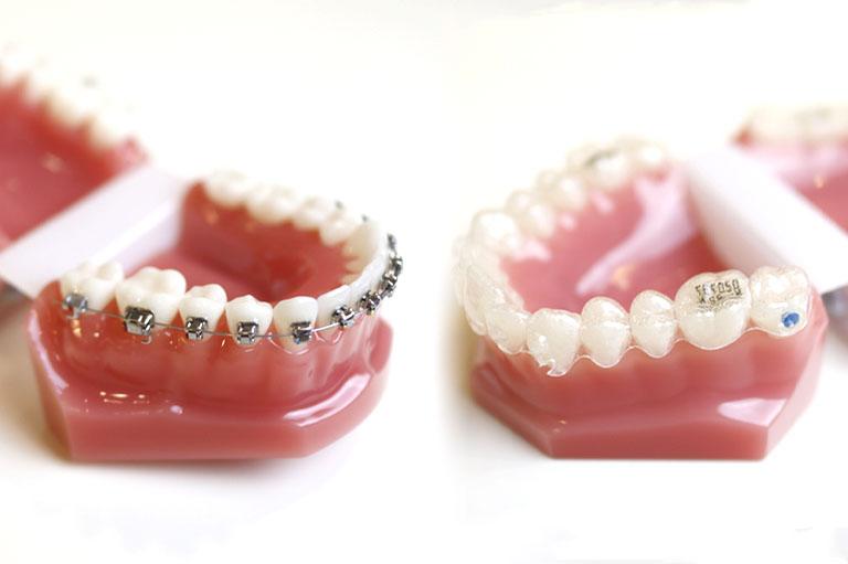 comparacion invisalign vs brackets ortodoncia en oviedo invisible y tradicional para corregir maloclusiones