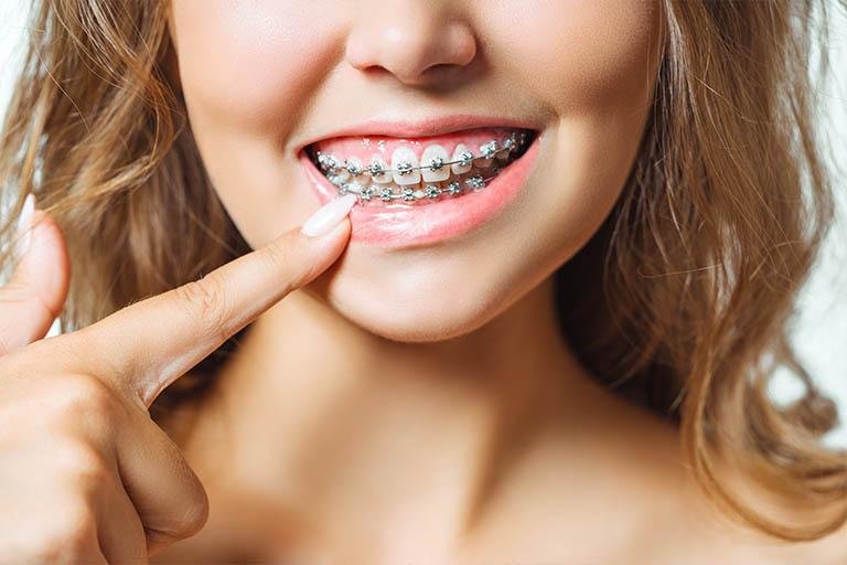 Bousoño Vargas. Hay varios factores a tener en cuenta a la hora de llevar ortodoncia