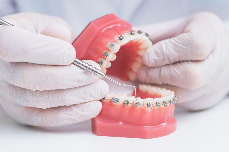 urgencias en ortodoncia en nuestra clínica dental en Oviedo.